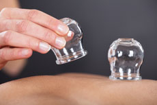 Cupping sessions now available at the George Wellbeing Center